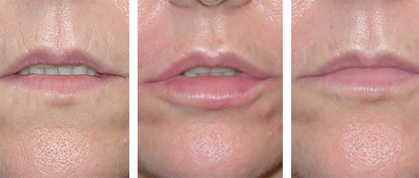 Ageing Lips restored by Sue Ibrahim